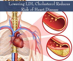 Lowering LDL Cholesterol Benefits Heart Patients- IMPROVE-IT Study