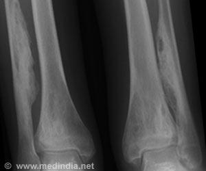 Oral Treatment Options for Chronic Osteomyelitis