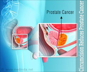 Circumcision Reduces Prostate Cancer Risk, Says New Research