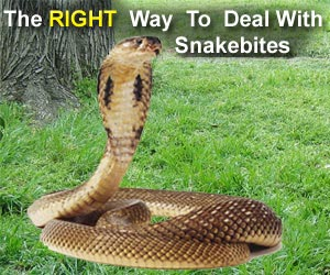 The RIGHT Way to Deal With Snakebites - Ask Dr. Simpson