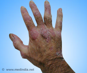 Combination of Biologics With Traditional Therapy Beneficial in Psoriasis