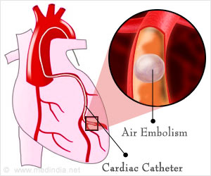Coronary Artery Air Embolism, a Dreaded Complication, Now Has a Cure