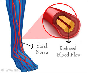 Chronic Diabetes and Hypertension in Sural Nerve Morphometry