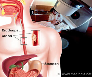 Treating Esophageal Cancer With Preoperative Chemoradiotherapy