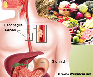 Esophageal Cancer Risk Reduced by Intake of Plant Based Nutrients
