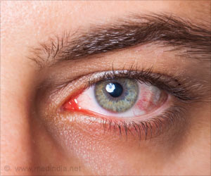 Treatment of Eye Diseases With Blood Products