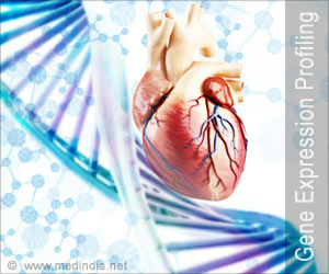 Gene Expression Profiling Score Predicts Heart Transplant Survival