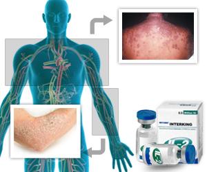 Low Dose Interleukin-2 can Improve Graft-versus-Host Disease