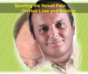 Sporting the Naked Pate: On Hair Loss and Balding
