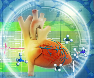 Role of Homocysteine in the Development of Cardiovascular Disease