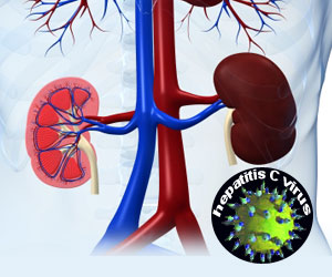 HCV Positive Kidney Failure Patients Can Receive Kidneys from HCV Positive Donors
