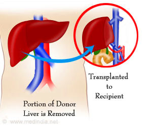 Liver Transplantation: Non-Adherence to Treatment Regime Linked to Adverse Clinical Outcomes in Organ Recipients