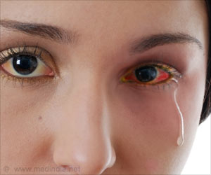Conjunctivitis / Madras Eye Prevention