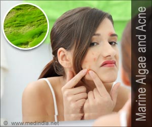 Fatty Acids from Algae Useful in Acne Treatment
