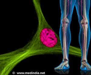 Mesenchymal Stem Cells - An Efficient Source of Cartilage Regeneration