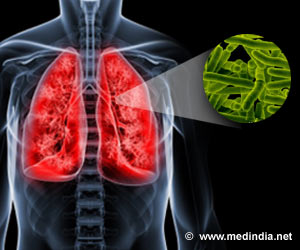 Prevention Treatment Beneficial for Children Exposed to Multidrug Resistant Tuberculosis Bacterium