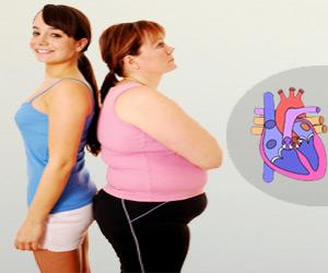 Obesity and Arterial Stiffness