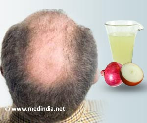 Onions and Hair Loss