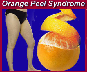 CELLULITE - 'Orange Peel' Syndrome