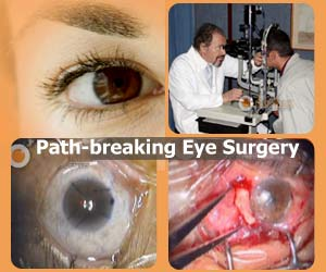 Path-breaking Eye Surgery in Southern India - Tissue Glue Used in Intraocular Lens Transplant