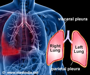 Is Pleurisy a Symptom or Condition?