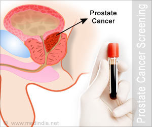 Screening for Prostate Cancer using PSA: Is it recommended?
