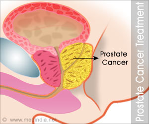 Primary Androgen-Deprivation Therapy Has No Survival Benefit in Cancers Confined to Prostate