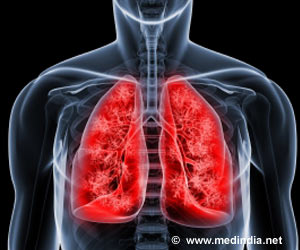Risk Factors Associated With Bleeding in Lung Cancer