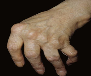 Rain as Cause of Pain in Rheumatoid Arthritis Continues to Baffle the Medical World