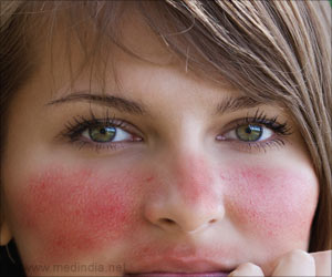 New Insecticide to Target 'Face Bugs' That Cause Rosacea