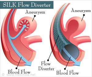 SILK Flow Diverter for Treatment of Intracranial Aneurysms