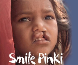 Pinki On The Smile Train