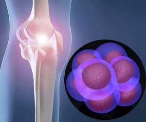 Stem Cell Treatment For Osteoarthritis Of Knee Joint