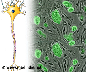 Stem Cell Therapy Useful in Secondary Progressive Multiple Sclerosis