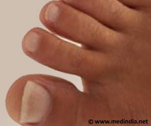 Potential Link Between Toenail Arsenic Concentration and Fat Intake