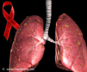 Newer Treatments to Avert Tuberculosis in HIV Infected Adults