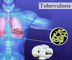 Indian Scientist Abroad Come Up With New Strategy to Treat Multidrug-resistant Tuberculosis More Effectively