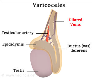Is Varicocelectomy the Answer to Painful Varicoceles in Men?