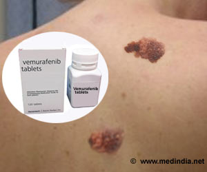 Vemurafenib Improves Survival in Advanced Malignant Melanoma