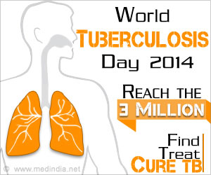 World Tuberculosis Day 2014- Find, Treat, Cure TB