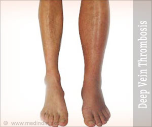 Deep Vein Thrombosis (DVT) Risk Calculator
