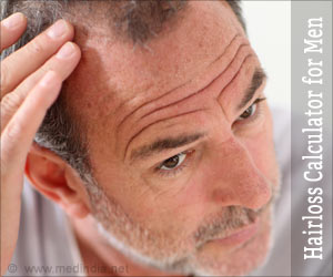 Baldness / Hairloss / Alopecia Calculator for Men