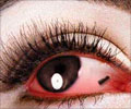 Foreign Object In The Eye - First Aid and Emergency Treatment Guide