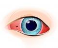 आंखों में अवांछित वस्तु