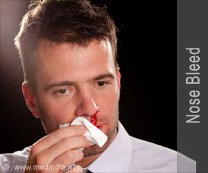First Aid-Nose Bleed