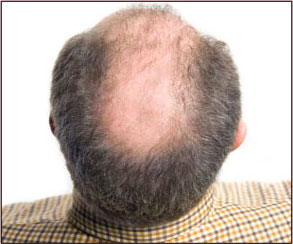 an analysis of balding Normal infant hair loss see the analysis of the prevalence of 29 causes of thinning hair conditions listing medical symptoms: thinning hair.