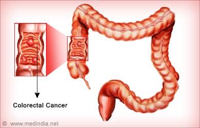 Risk of Aloe Vera: Colorectal Cancer