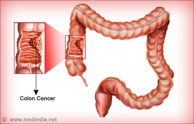Dukan Diet Side Effects Colon Cancer