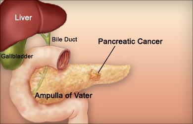 Graviola Natural Cancer Killer Health Benefits Side
