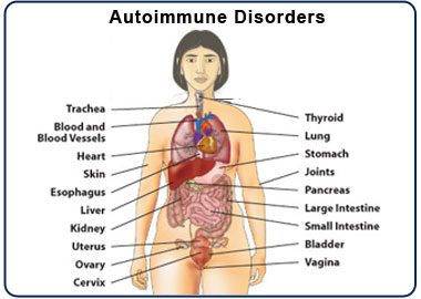 autoimmune disorders - types - symptoms - signs - diagnosis, Skeleton
